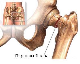 Осторожно: остеопороз!